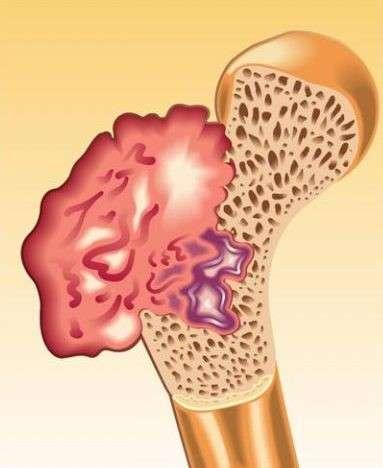 Саркома кости — что это, причины, виды, диагностика, лечение