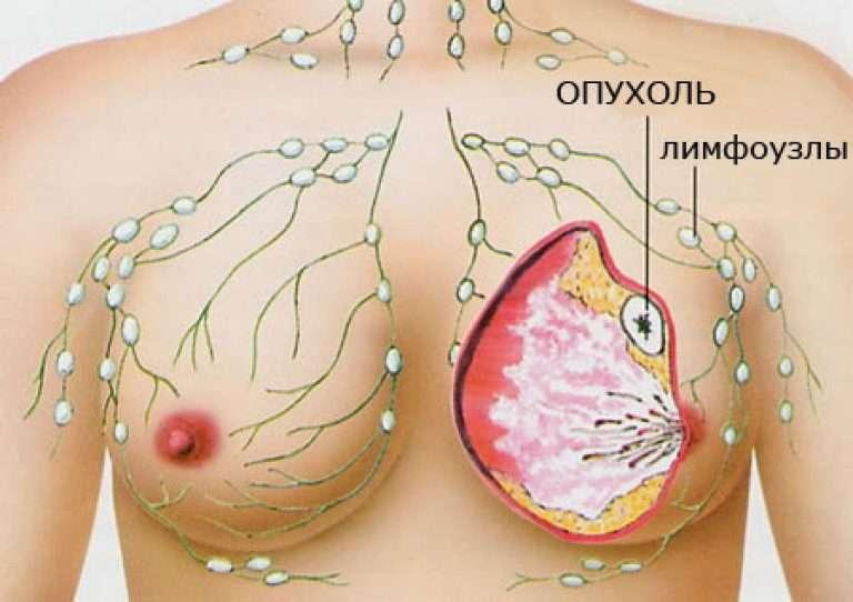 porno-onlayn-bolshie-grudi-v-onkologii-eva