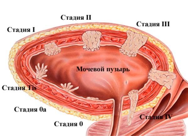 Стадии рака мочевого пузыря простаты