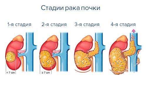 Хромофобный рак почки