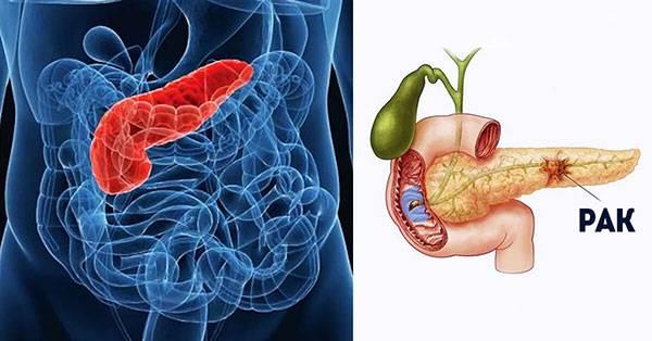 Рак поджелудочной железы: симптомы и прогнозы по сроку жизни
