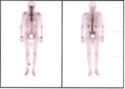 Рак полового члена - причины, симптомы, диагностика и лечение, прогноз