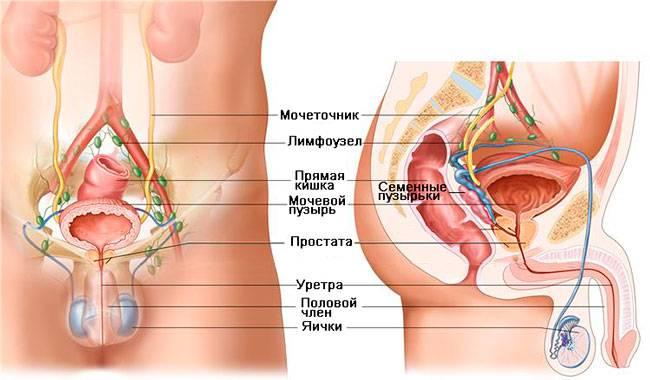 Лучевая диагностика рака предстательной железы