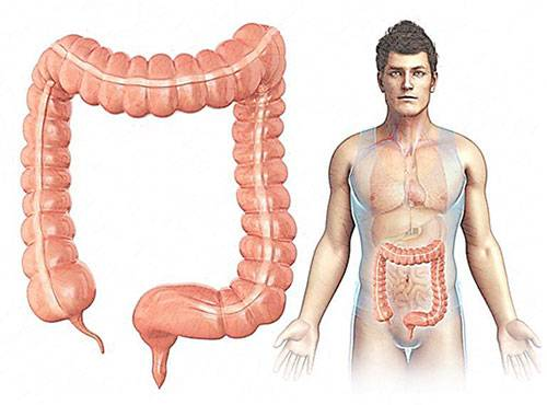 Карцинома толстой кишки